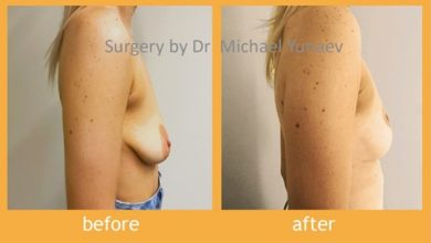 Photo of You Can Easily Lift Your Breasts With A Surgical Procedure