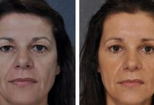 Photo of Even The Smallest Cosmetic Surgeries Have A Big Effect