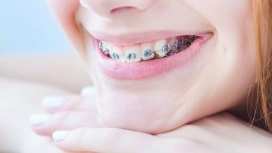 Photo of Get the right orthodontist for your children