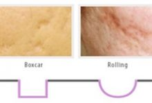 Photo of How much per cent of improvement can be achieved through subcision on acne scars?