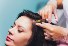 Photo of A Detailed Guide on PRP – What is it and Is it Really Effective against Hair Loss?