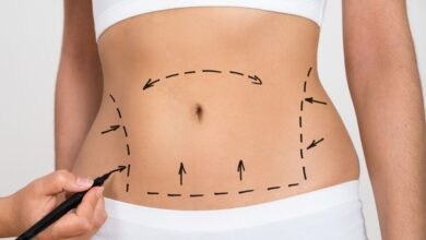 Photo of Liposuction vs. Weight Loss Surgery: Which Should You Get